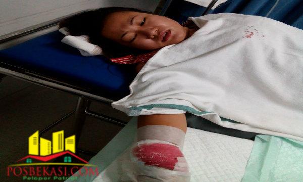Renita Septiani, mengalami luka bacok akibat dibacok pelaku tak dikenal.[Aja]