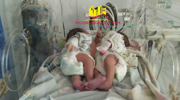 Bayi kembar siam wanita lahir di Desa Burangkeng, Kecamatan Setu dari pasangan Jubaedah - Erwin Susanto, pada Sabtu (16/4/2016).[YAN]