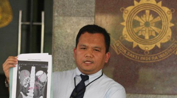 Kombes Pol Umar Surya Fana.[DOK]