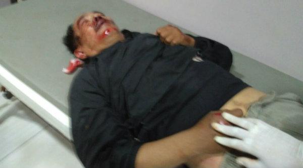 Tasrudin, korban kecelakaan tunggal di Kampung Awirarangan, Setu, pada Rabu 26 Oktober 2016 malam.[YAN]